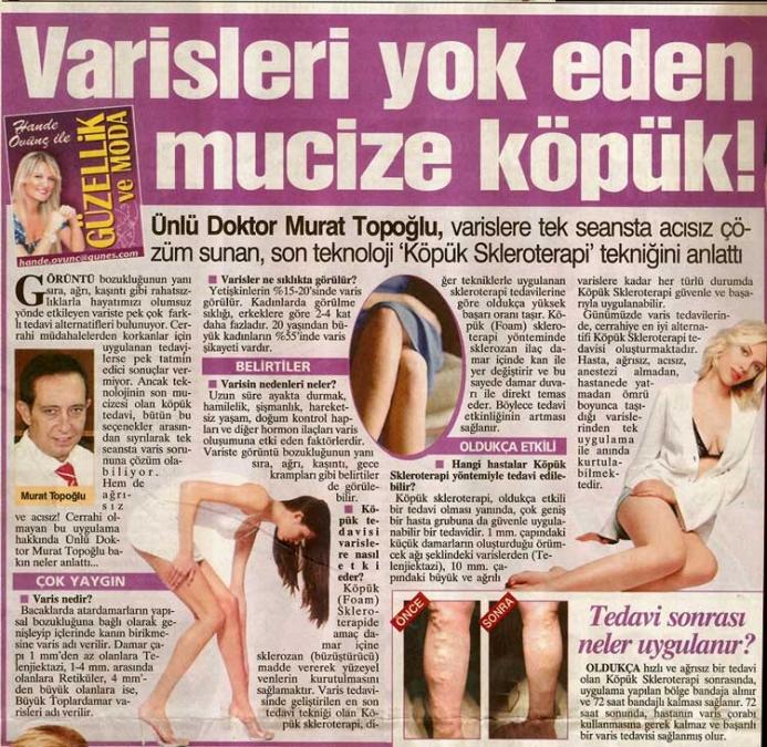 Dr. Murat TOPOĞLU Gazete ve Dergi Haberleri - 19